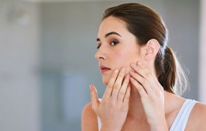 8 Cara Mengatasi Wajah Breakout Paling Ampuh dan Aman