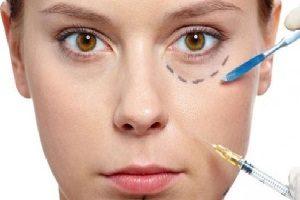 cara cepat hilangkan kantung mata